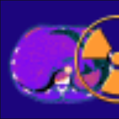 Sante CT Viewer(CT图像查看工具) V2.2 免费版