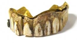 200年前黄金假牙是怎么回事 200年前黄金假牙是什么情况